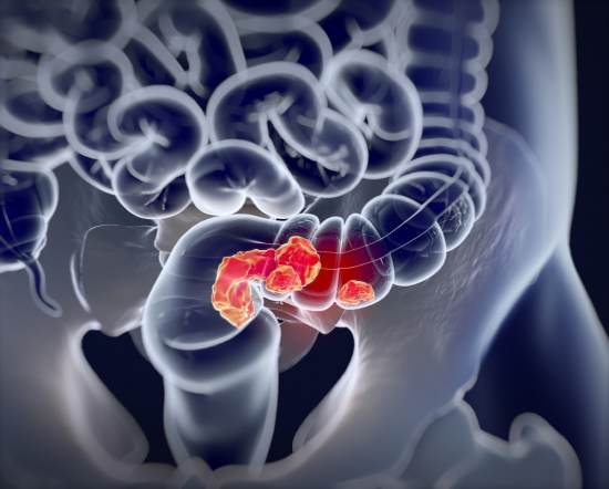 cancer colorectal, cancer de colon