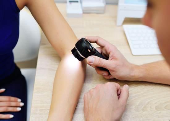 dermatoscopie, alunite, cancer de piele, consult dermatologic, melanom malign