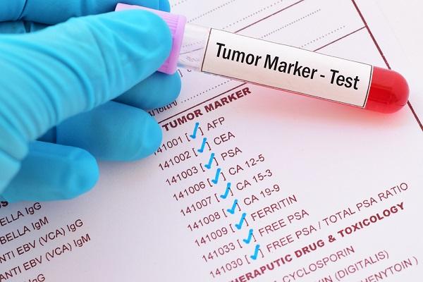 markeri tumorali, CA 125, free PSA, CEA