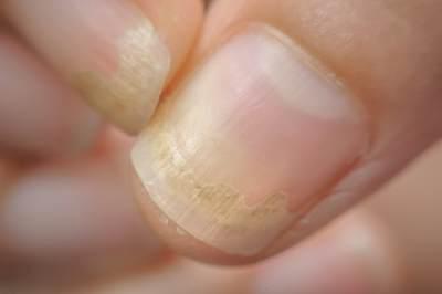 ciuperca unghiei, onicomicoza