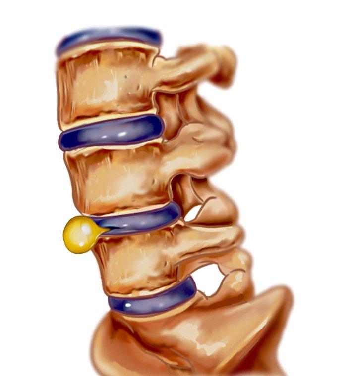 Hernia de disc: de ce persistă durerile după operaţie?
