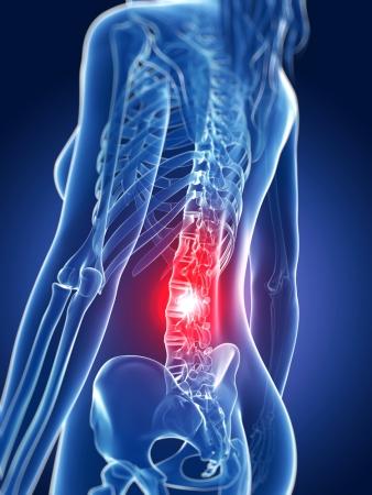 Durere de spate scazuta timp de 10 saptamani de sarcina