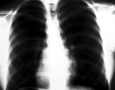 plamani - cancer pulmonar