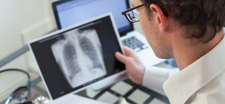 Uniti impotriva tuberculozei - evenimentul care marcheaza Ziua Mondiala de lupta impotriva Tuberculozei