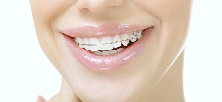 Ingrijirea aparatului dentar fix