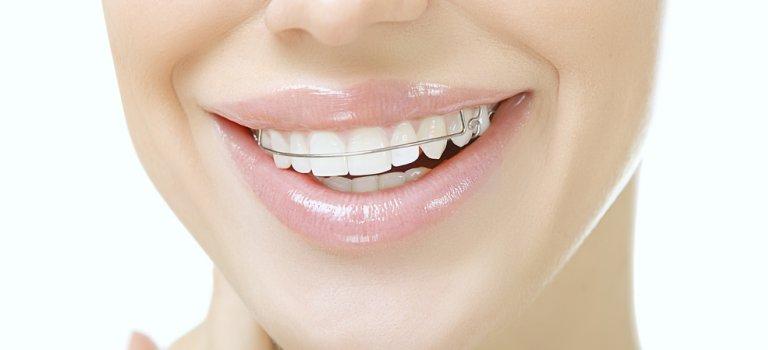 Afla daca esti un candidat potrivit pentru aparatul dentar