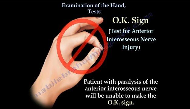 VIDEO educativ: Examineaza-ti mana ca un medic specialist prin urmatoarele Teste!