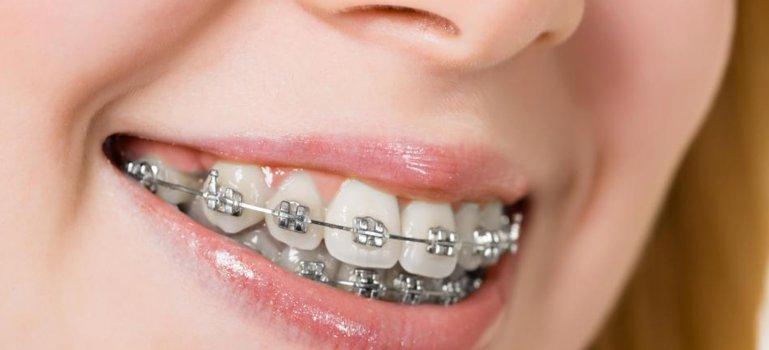 5 probleme ale dintilor pe care le poti trata cu aparatul dentar