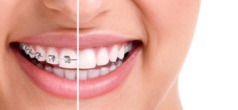 Aparatul dentar - influenta asupra simetriei faciale