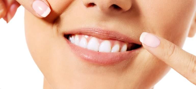6 motive pentru care iti sangereaza gingiile
