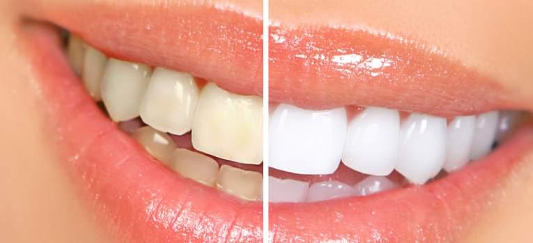 Cele mai eficiente metode prin care putem avea dinți albi și strălucitori