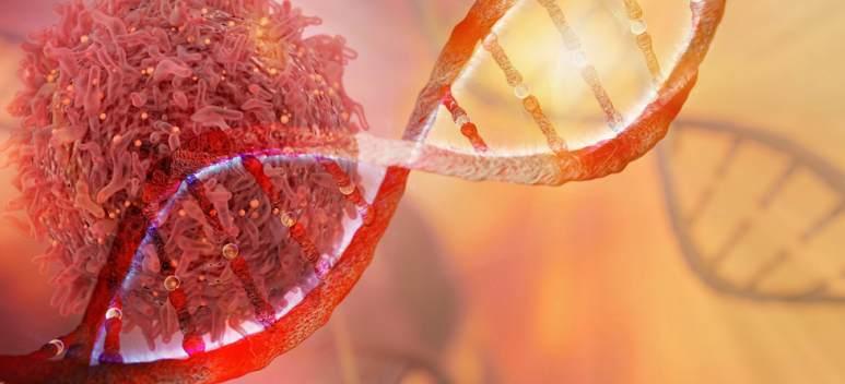 Conf. Dr. Valentin Cernea: În anii '80, procentul de vindecare de cancer era de 30, acum trecem de 65 %