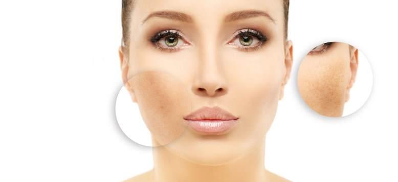 Principalele cauze care duc la hiperpigmentarea pielii