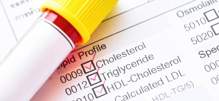 Top analize recomandate dacă vreți să slăbiți sănătos. 'Trebuie să investigăm mai întâi funcția tiroidiană!'