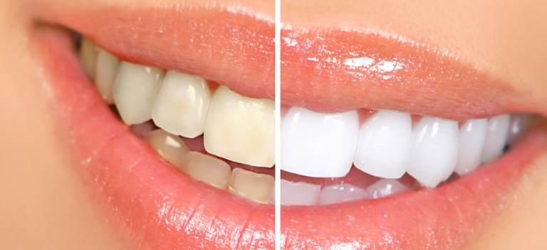 5 lucruri pe care ar trebui să le știi înainte de albirea dentară