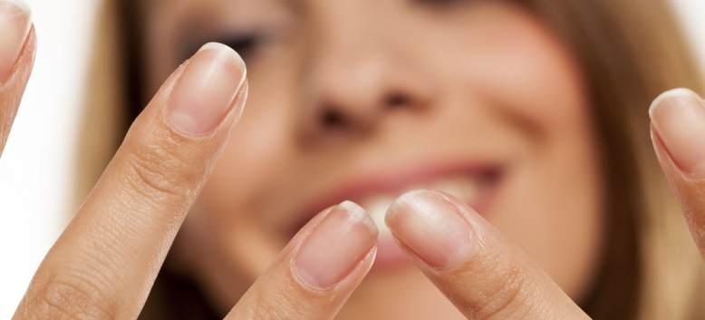 Cele mai frecvente probleme care pot apărea la nivelul unghiilor
