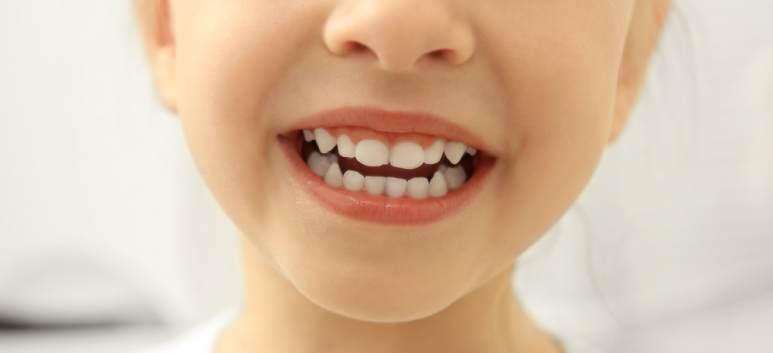 Explicațiile medicului ortodont: Aparatul dentar la copii -necesitate sau modă?