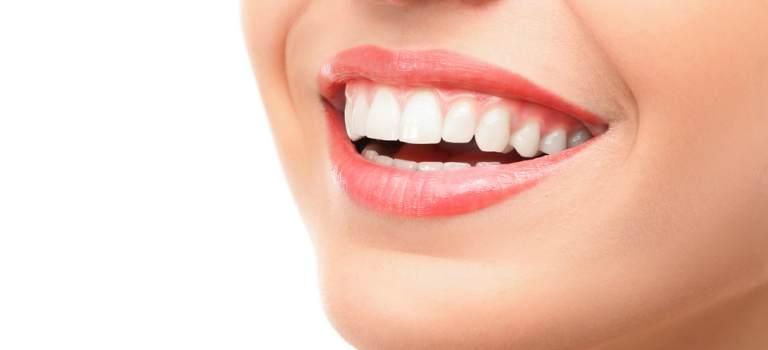 Cum grăbim recuperarea după implantul dentar