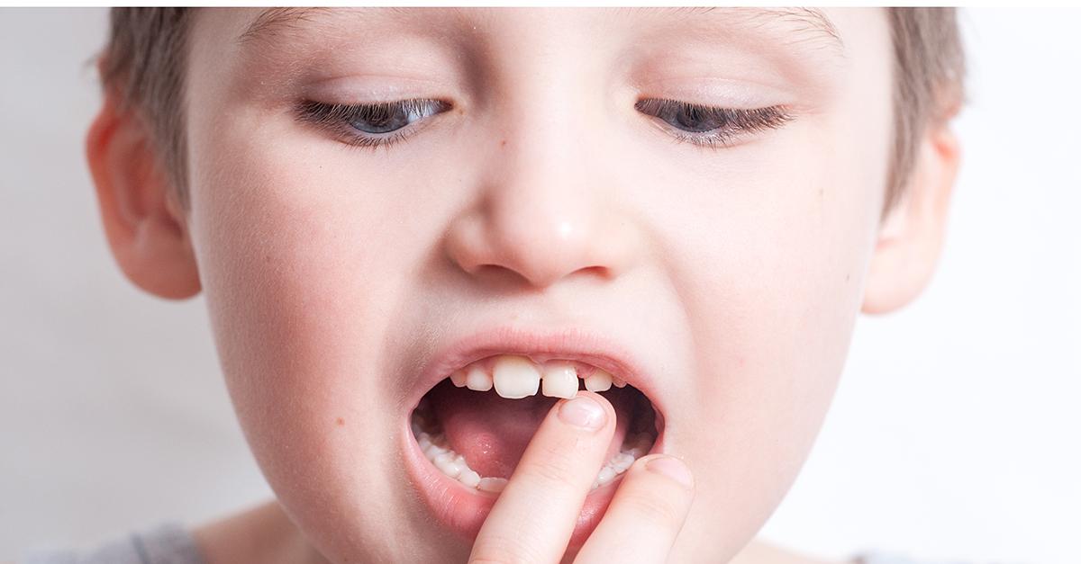 Interviu cu Dr. Oana Laslau: importanța purtării aparatului dentar la adulți și copii