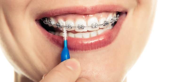 Curatarea dintilor atunci cand purtam aparat dentar